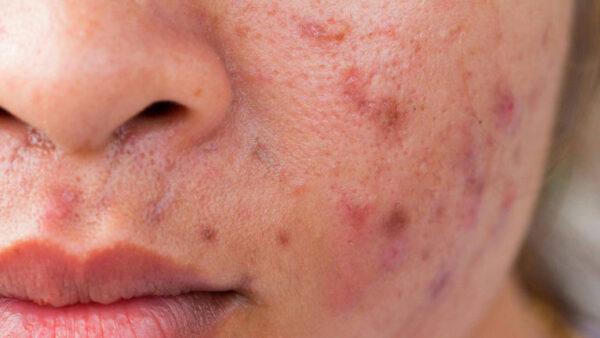 Creme antibrufoli e acne: quali sono quelle sicure